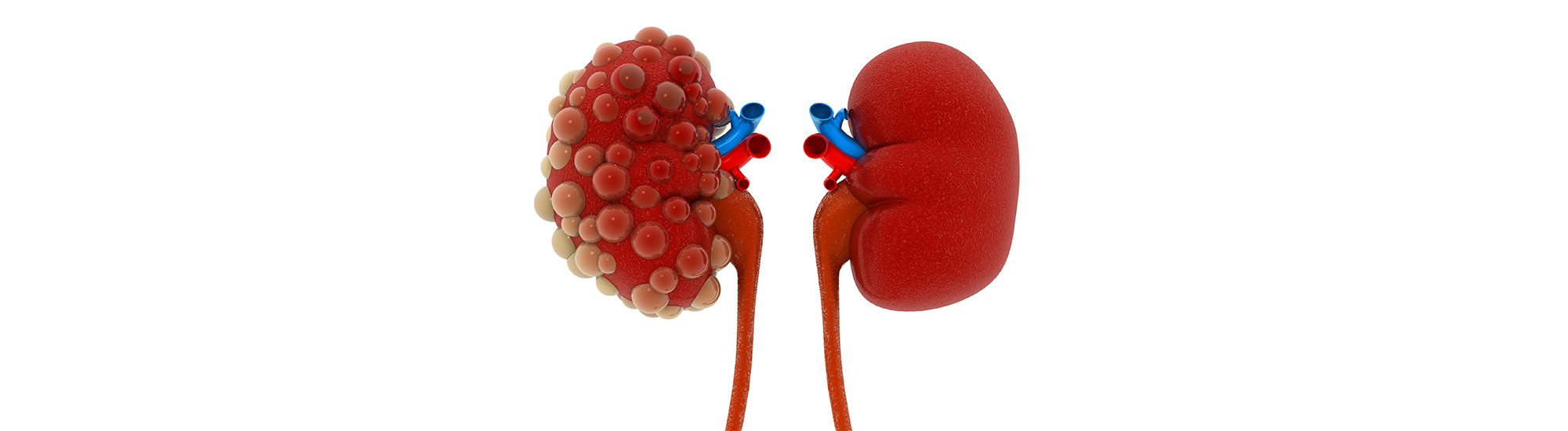 Ayurvedic treatment for What is Acute Kidney Failure
