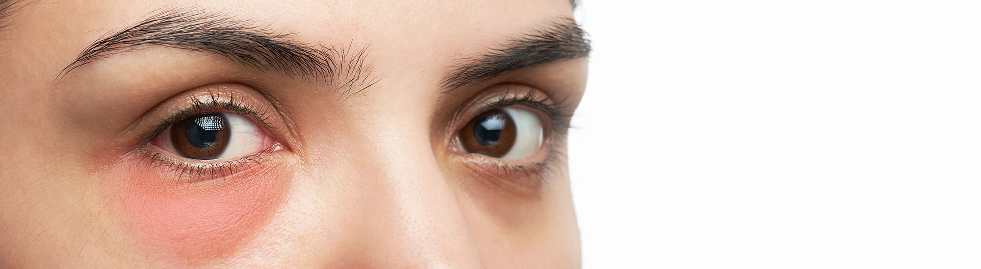 Ayurvedic treatment for What is Blepharitis