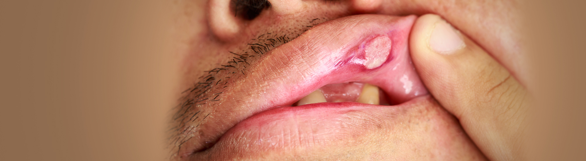 Ayurvedic treatment for Canker sores-mouth ulcers