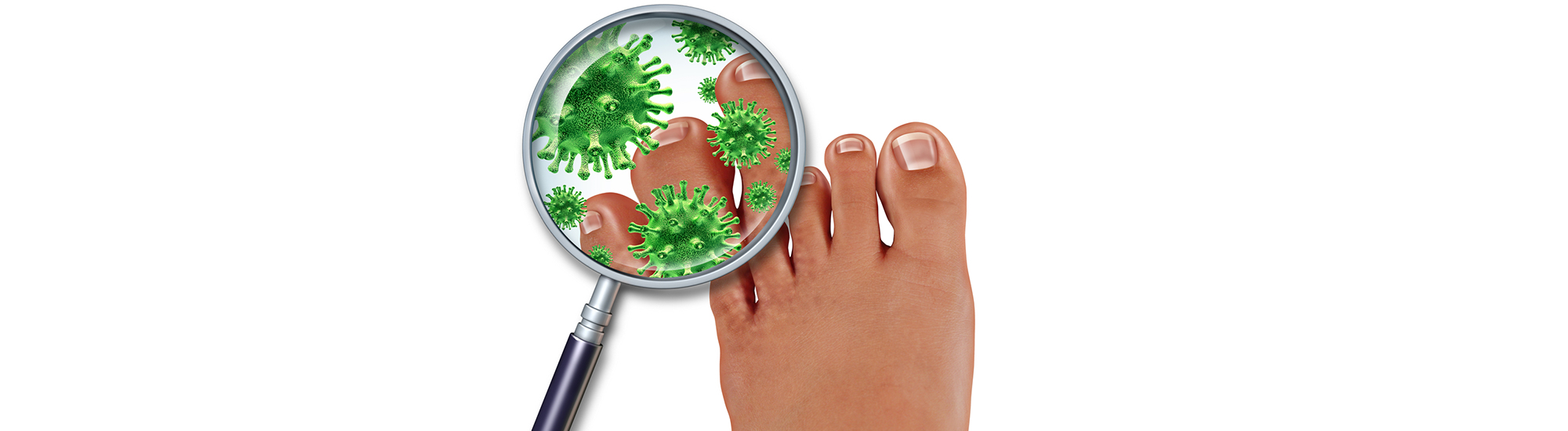 Ayurvedic treatment for Fungal skin Infection -Tinea-
