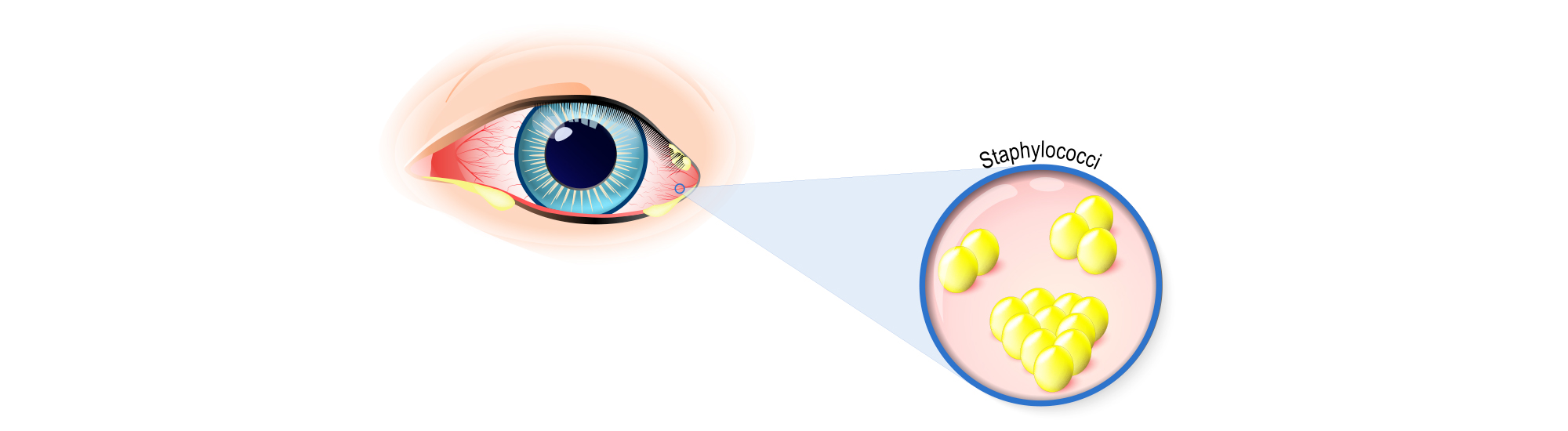 Ayurvedic treatment for What is Eye discharge