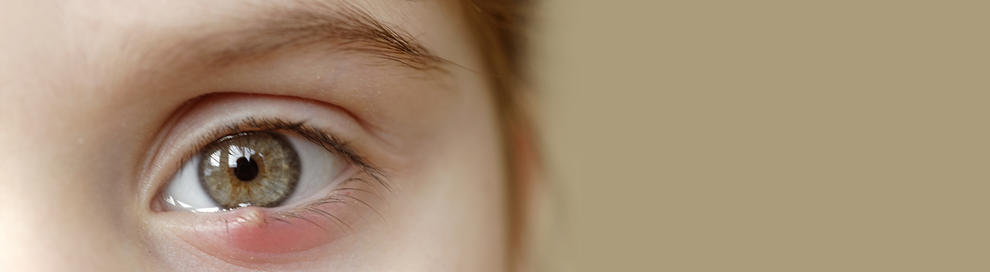 Ayurvedic treatment for What is Sty - Eyelid cyst