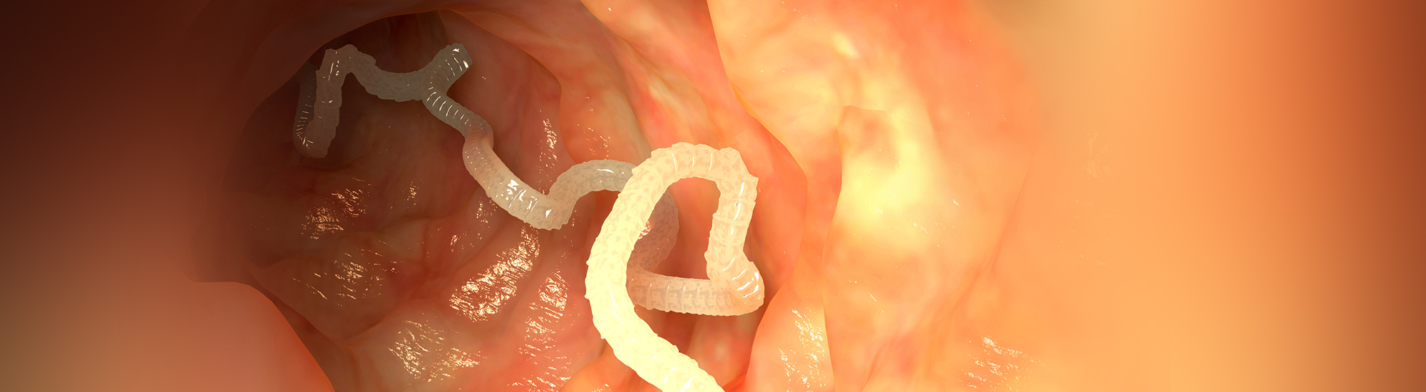 Ayurvedic treatment for What is Intestinal worms