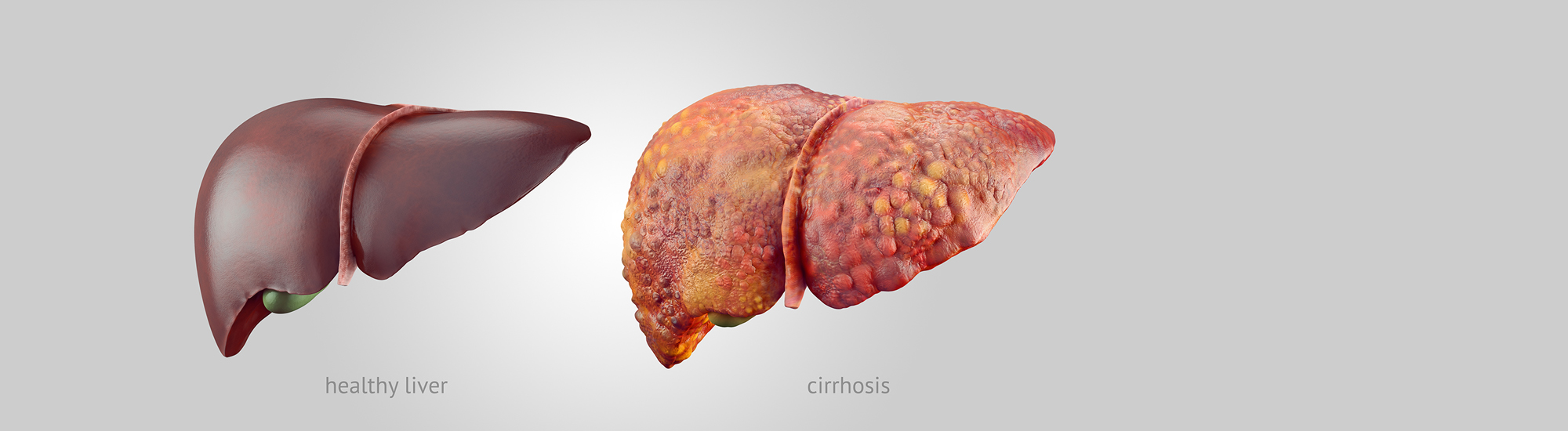 Ayurvedic treatment for Liver Cirrhosis Diagnosis