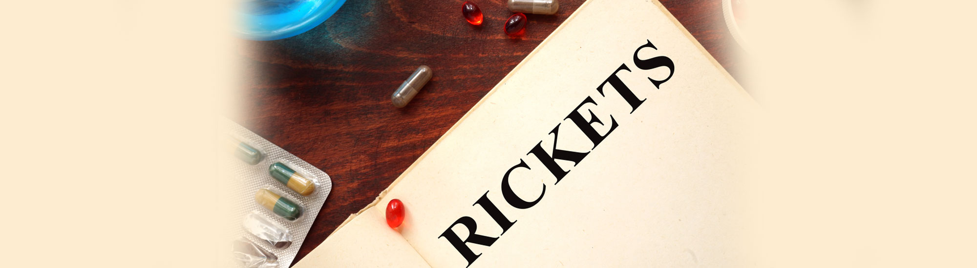 Ayurvedic treatment for Rickets