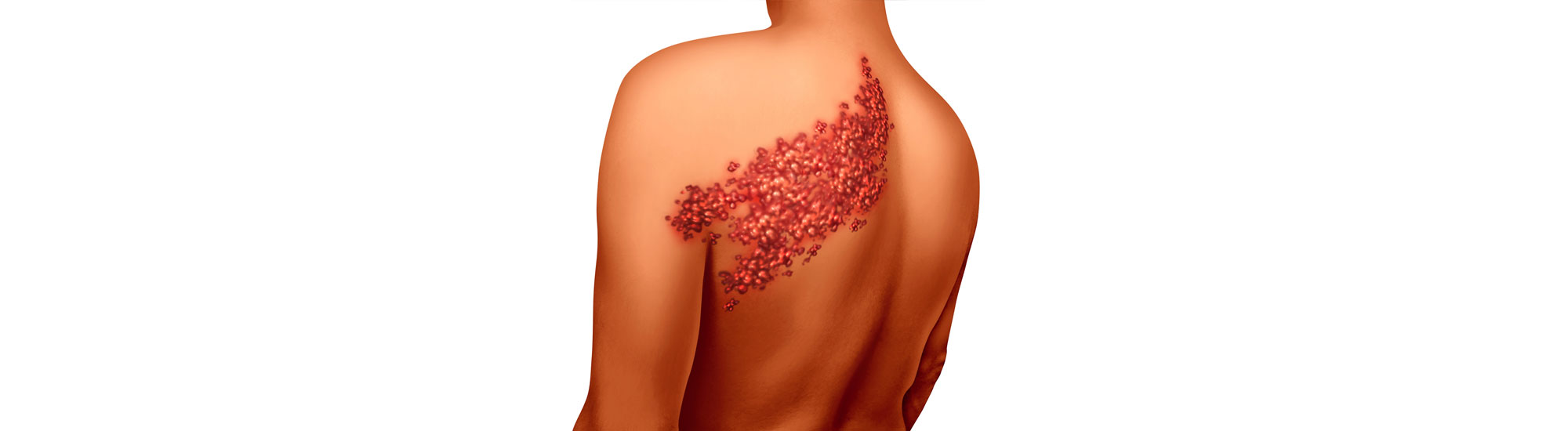 Ayurvedic treatment for Shingles Causes
