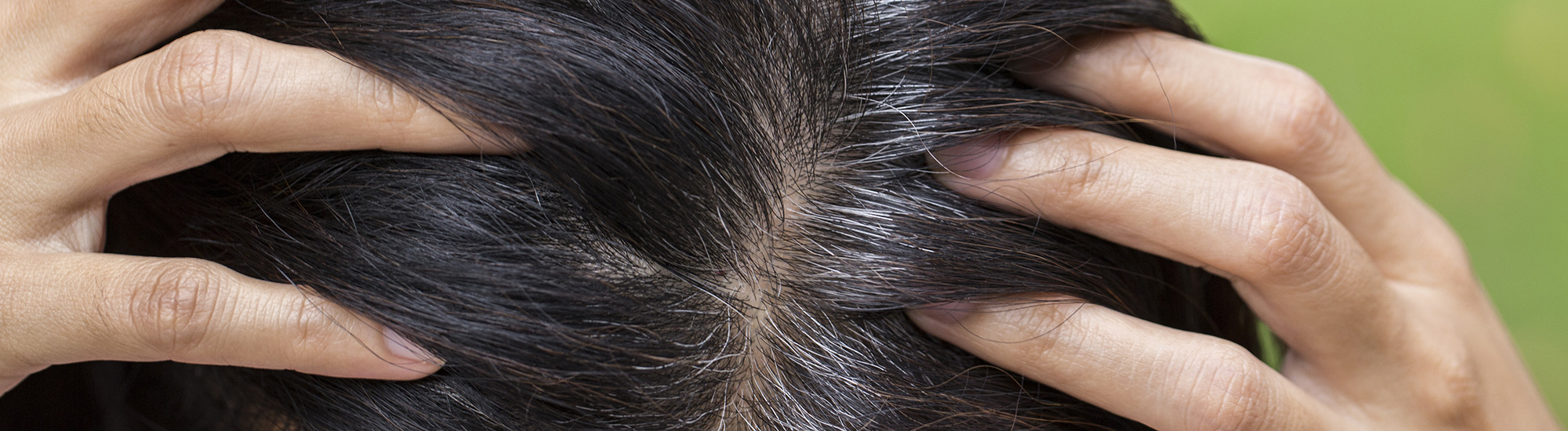 Ayurvedic treatment for Premature greying Causes